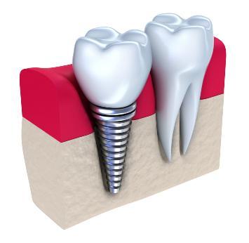 Какие имплантаты зубов лучше поставить?