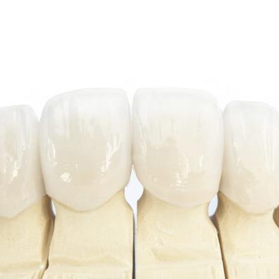 Виды коронок на передние зубы
